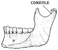 mandible fracture Archives - MD direct